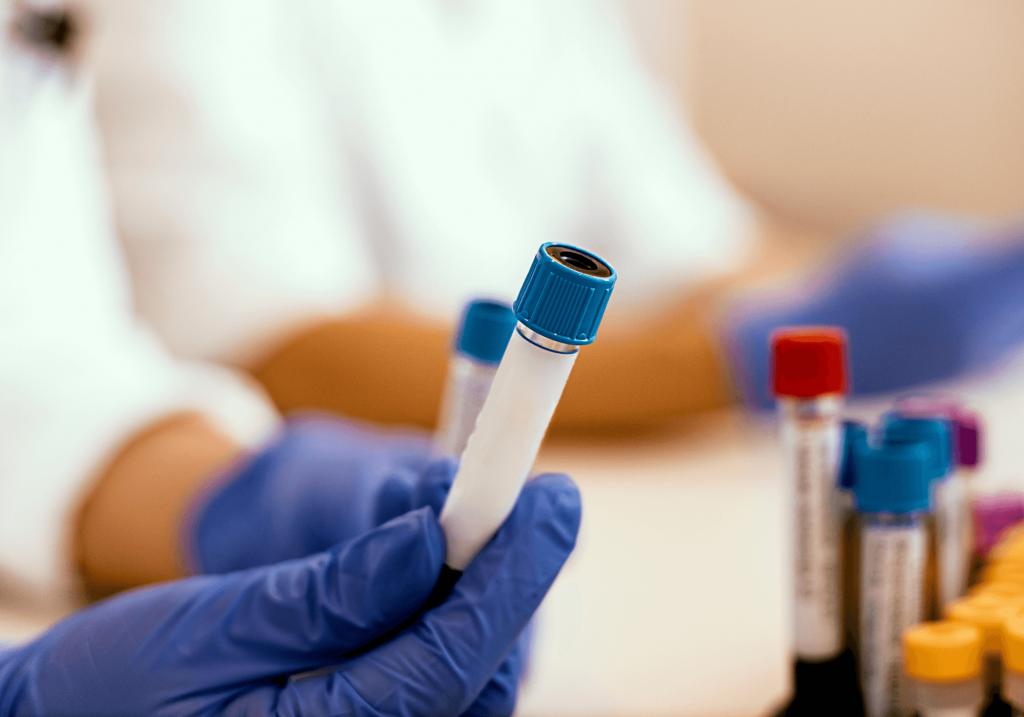 in house lab rheumatology (1)